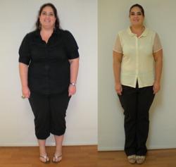 Weight Loss Success In Miramar, Florida