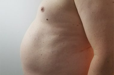 Obesity Photo Man